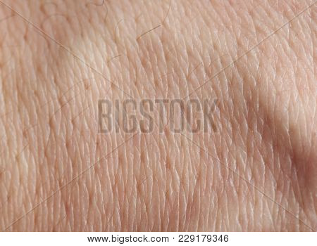 Human Skin Pores With Black Hair Macro Close Up