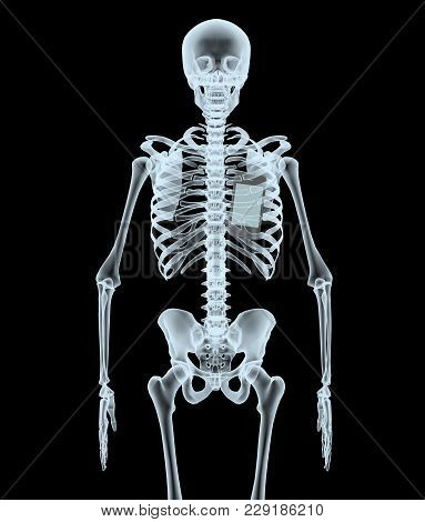 Skeleton X-ray Displaying Smartphone. Isolated 3d Illustration On A Black Background