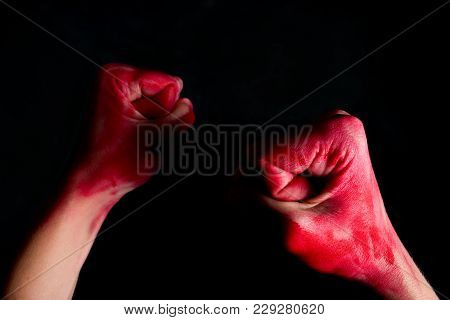 Woman's Fists With Blood