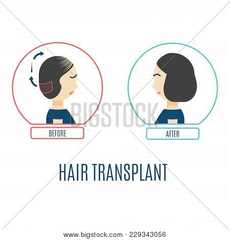 Hair Transplantation Infographics. Female Patient With Alopecia Before And After The Procedure. Hair