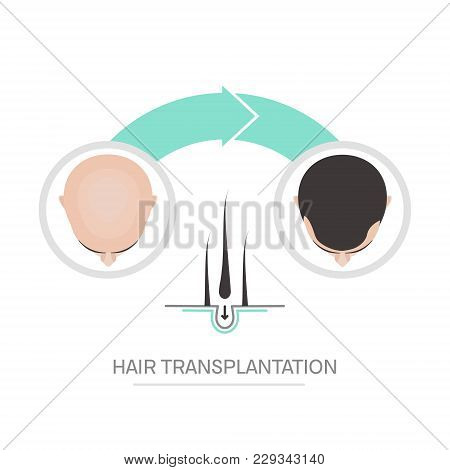 Hair Transplantation Surgery Steps Infographics. Patient Before And After The Procedure. Male Hair L