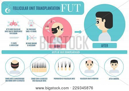 Male Hair Loss Fut Medical Treatment Infographic. Stages And Benefits Of Follicular Unit Transplanta