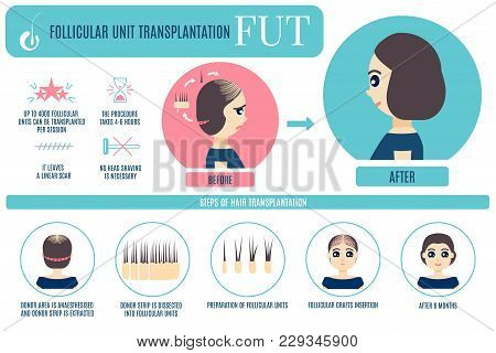 Female Hair Loss Fut Medical Treatment Infographic. Stages And Benefits Of Follicular Unit Transplan