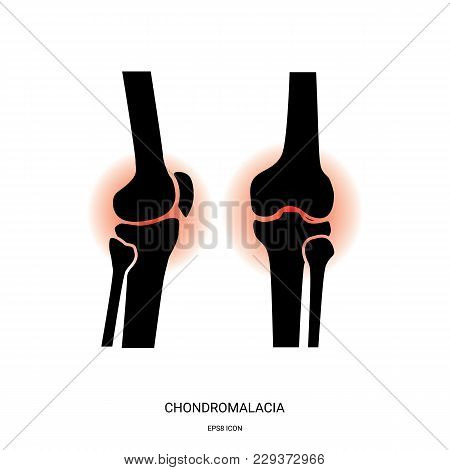 Chondromalacia And Knee Joint Icon. Human Bones Joint Symbol For Medical Apps And Websites