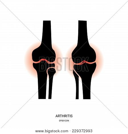 Arthritis And Knee Joint Icon. Human Bones Joint Symbol For Medical Apps And Websites
