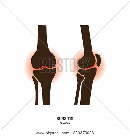 Bursitis And Knee Joint Icon. Human Bones Joint Symbol For Medical Apps And Websites