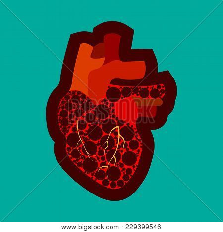 Congenital Heart Disease Awareness Poster With Sad Cartoon Character On Blue Background. Human Body