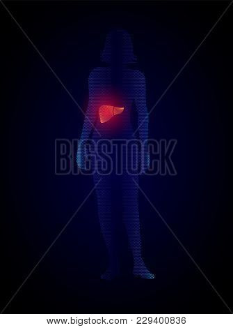 Vector X Ray Liver Infographics. Silhouette Of A Woman With A Liver, Liver Disease Medical Illustrat