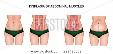 Illustration Of Abdominal Muscle Diastasis After Pregnancy