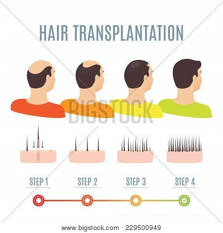Hair Transplantation Surgery Steps Infographics. Man Patient Before And After Procedure. Male Hair L