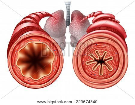 Asthma Diagram As A Healthy And Unhealthy Bronchial Tube With A Constricted Breathing  Problem Cause