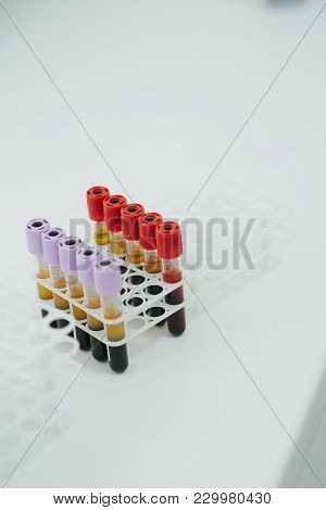 Medical Equipment. Close Up Of Some 3 Ml Test Tubes With Mauve Plugs For Blood Samples On A Rack. Th