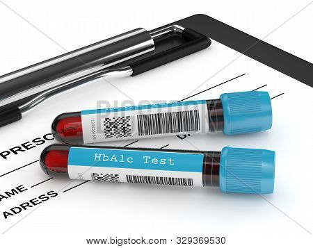 3d Render Of Hba1c Blood Tubes Lying On Clipboard. Test For Diabetes Concept.