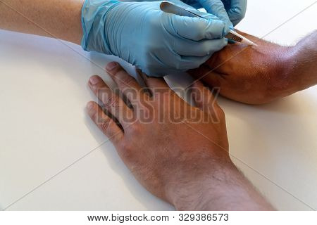 A Doctor Or Nurse Wearing Gloves Removes Burnt Skin With Medical Tweezers From The Patient Hands.