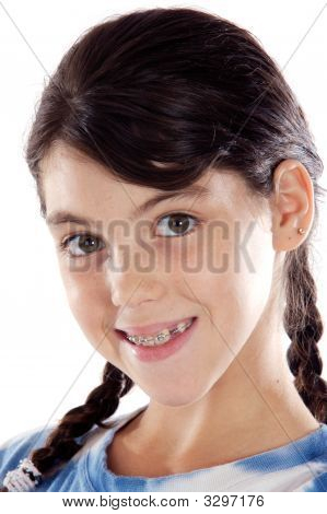 Adorable Girl With Braces