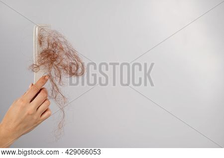 Close-up Of A Female Hand Holding A Comb With A Bun Of Hair On A White Background. Hair Loss And Fem