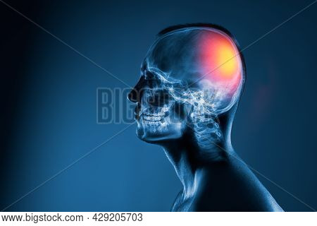 X-ray Of A Man's Head On Blue Background. Medical Examination Of Head Injuries. Cerebral Stroke. The