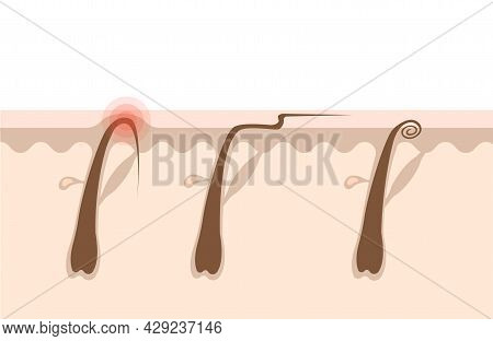 Types Of Ingrown Hairs Flat Illustration. Cross Section Of The Human Skin With Hair Follicles. Hair