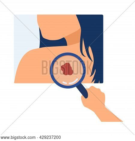 Skin Cancer Diagnosis. Doctor Detecting Asymmetric Evolving Spot On Skin. Melanoma, Dermatology, Mol