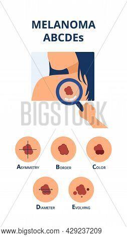 Melanoma Abcdes Symptoms Like Big Diameter, Asymmetry, Uneven Color, Uneven Border And Evolving Next