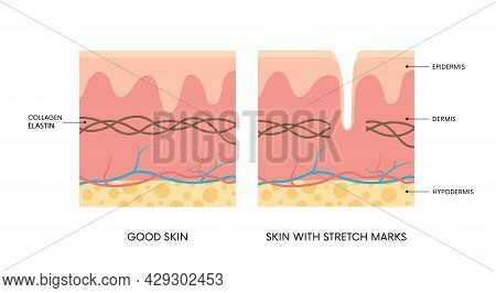 Anatomy Of Skin With And Without Stretch Marks. Collagen, Elastin, Striae. Body Positivity, Beauty,