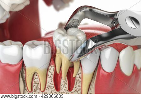 Tooth extraction by dental forceps on model of human jaw. 3d illustration