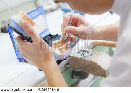 Technician Dental Is Working With Complete Lower And Upper Metal Ceramic Prosthesis Dental. Dental T