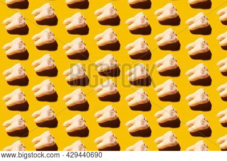 Lots Of Wisdom Teeth With Tooth Decay, Yellow Background. Removed Third Molars Affected By Caries. D
