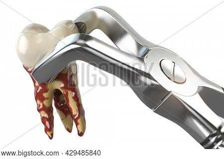 Tooth extraction with dental forceps isolated on white background. 3d illustration
