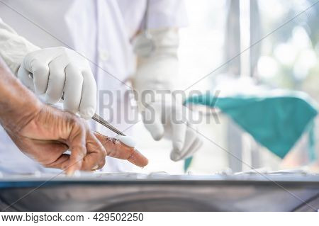 A Doctor In White Clothes, Wearing White Anti-germ Gloves, Is Cleaning The Wound On A Person's Finge