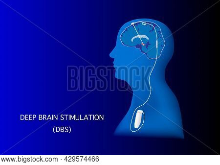 Neuromodulation With Deep Brain Stimulation Or Dbs For Treatment Of Parkinson's Disease And Various
