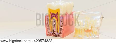 Dental Decay Model Shows Good Tooth. Plastic Model Tooth Without Caries. Inflammation Of The Nerves