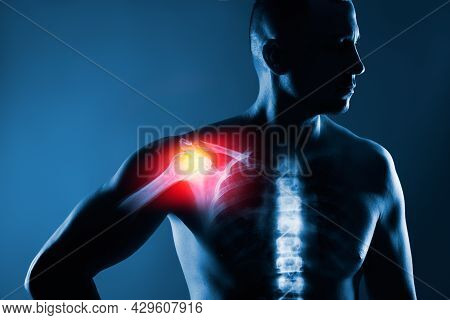 Human Shoulder Joint In X-ray On Blue Background