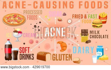 What Causes Acne. Acne-causing Food. Horizontal Poster