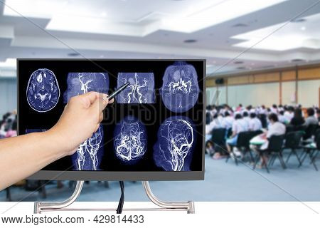 Mra Brain Or Magnetic Resonance Angiography Of A Cerebral Artery In The Brain With Hand Doctor Point
