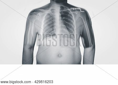 Closeup Body Human X-ray Of Shoulder Showing Normal And Fracture Of Distal Clavicle Or Collarbone.th
