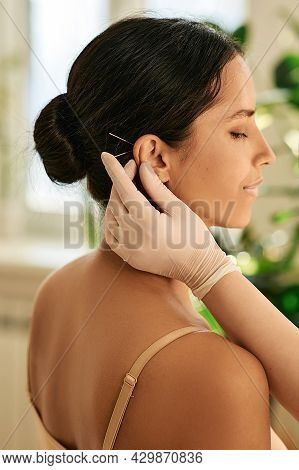 Acupuncture. Woman Having Ear Acupressure Or Ear Acupuncture , Side View
