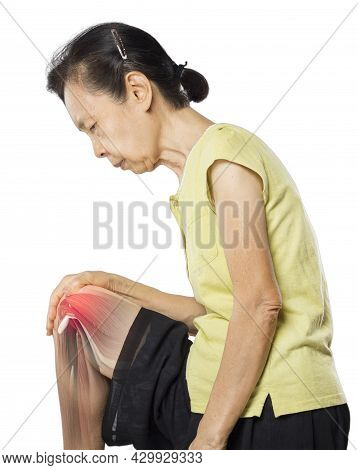 Old Asian Woman Knee Muscle Pain X-ray Muscle Injury