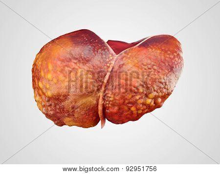 Realistic Illustration Of Cirrhosis Of Human Liver