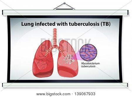 Diagram showing lung cancer illustration