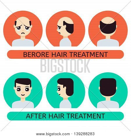 Front side back view of a man with hair loss problem before and after hair treatment and hair transplantation. Male hair loss set in cartoon style. Perfect for hair clinics. Vector illustration.