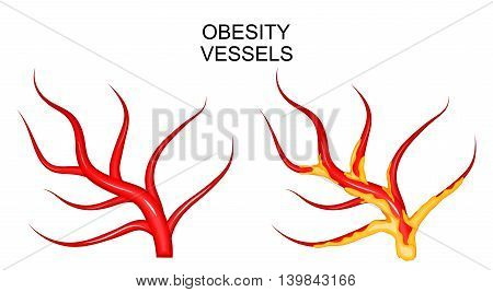 illustration of the blood vessels healthy and obese