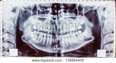 Panoramic x-ray image of teeth. Problem with wisdom tooth.