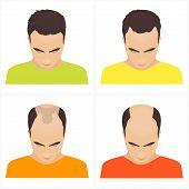 Male hair loss stages set. Male pattern baldness. Different stages of hair loss in men. Transplantation of hair. Human hair growth. Hair care concept. Vector illustration. poster