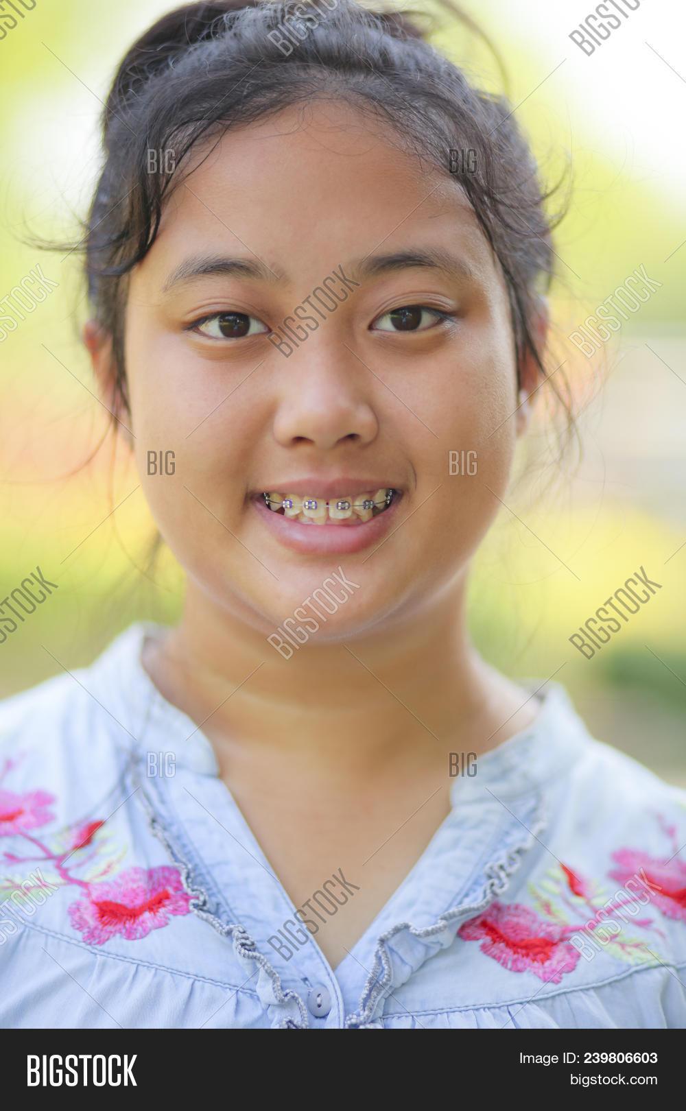 Close Head Asian Teen Image Photo Free Trial Bigstock 16 notes jan 2nd, 2021. close head asian teen image photo