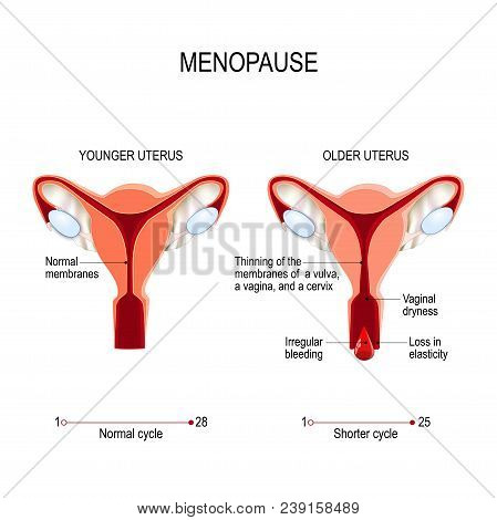 Younger And Older Women Uterus. Menopause Or Climacteric. Vector Diagram For Medical Use