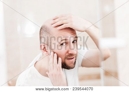 Male alopecia or hair loss concept - adult caucasian bald man looking mirror for head baldness treatment poster