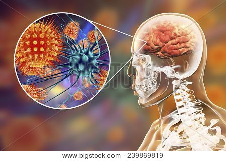Viral Meningitis And Encephalitis, Medical Concept, 3d Illustration Showing Brain Infection And Clos
