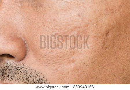 The Cheek Of Men With Facial Problems. Acne Scars,large Pores,pimple, Comedone,oily And Dull Skin.th