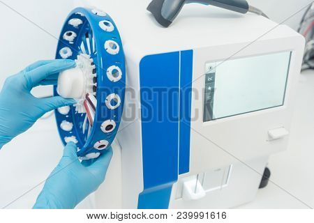 Doctor mounting blood tubes on spin wheel of centrifugal analyzer